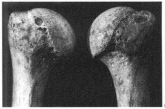 rheumatoid_arthritis_humerus